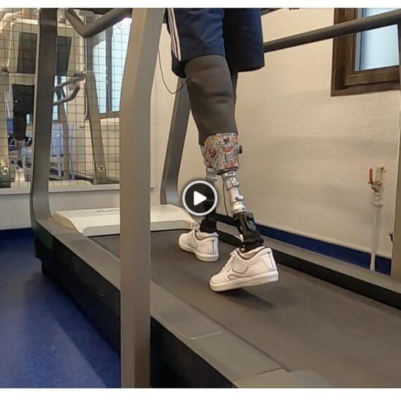 Marche prothèse